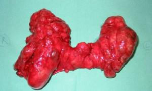 20101130141756!Thyroid_2